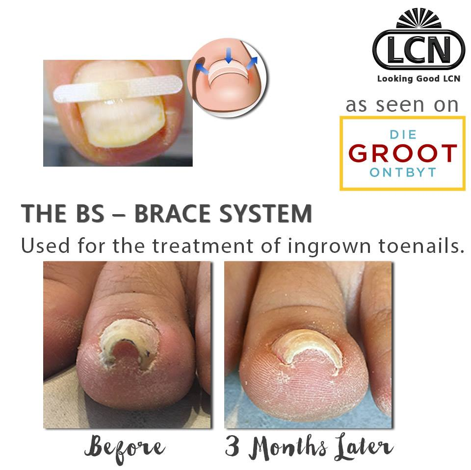 lcn-braces-for-ingrown-toenails